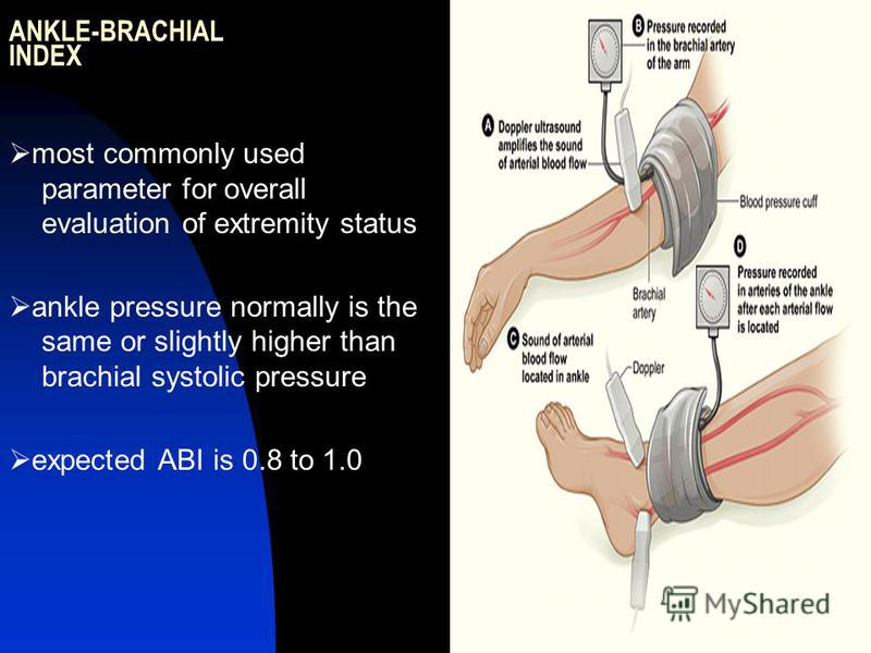ANKLE-BRACHIAL INDEX most commonly used parameter for overall evaluation of extremity status ankle pressure normally is the same or slightly higher than brachial systolic pressure expected ABI is 0.8 to 1.0