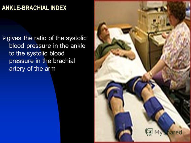 ANKLE-BRACHIAL INDEX gives the ratio of the systolic blood pressure in the ankle to the systolic blood pressure in the brachial artery of the arm
