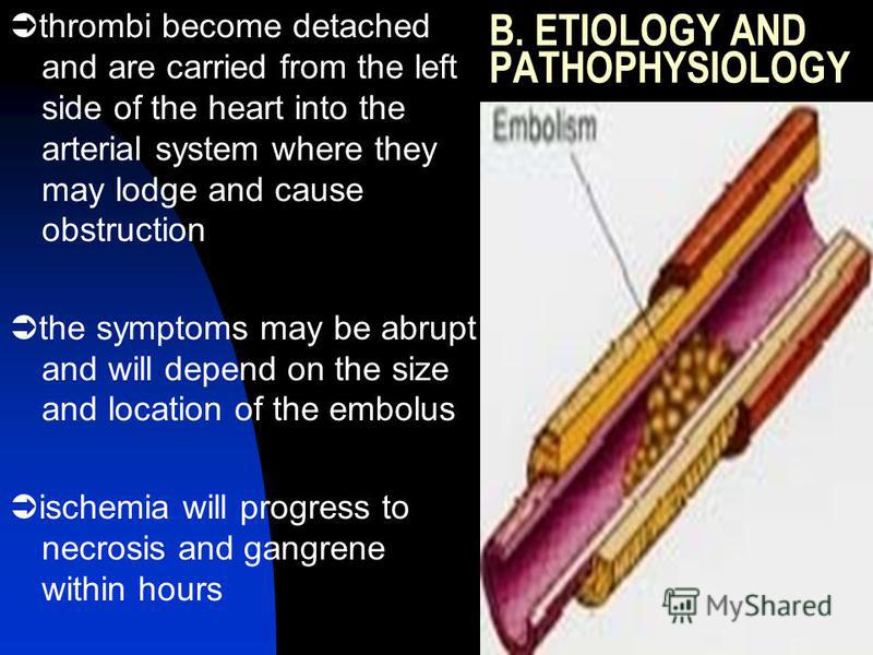 B. ETIOLOGY AND PATHOPHYSIOLOGY thrombi become detached and are carried from the left side of the heart into the arterial system where they may lodge and cause obstruction the symptoms may be abrupt and will depend on the size and location of the emb