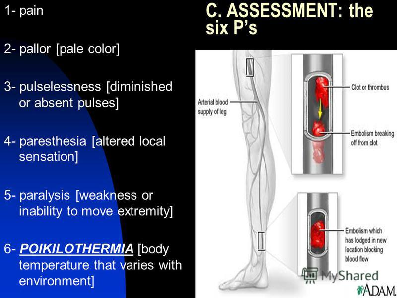 C. ASSESSMENT: the six Ps 1- pain 2- pallor [pale color] 3- pulselessness [diminished or absent pulses] 4- paresthesia [altered local sensation] 5- paralysis [weakness or inability to move extremity] 6- POIKILOTHERMIA [body temperature that varies wi