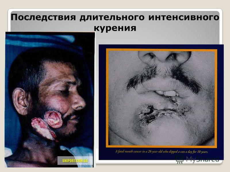 Последствия длительного интенсивного курения