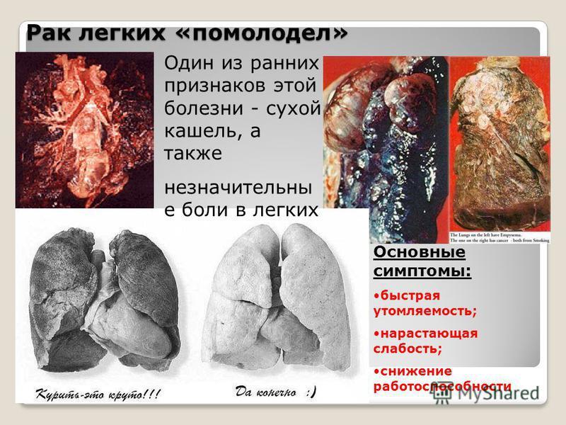 Рак легких «помолодел» Один из ранних признаков этой болезни - сухой кашель, а также незначительны е боли в легких Основные симптомы: быстрая утомляемость; нарастающая слабость; снижение работоспособности