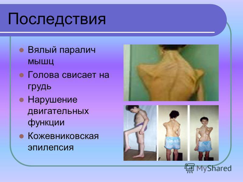 Последствия Вялый паралич мышц Голова свисает на грудь Нарушение двигательных функции Кожевниковская эпилепсия
