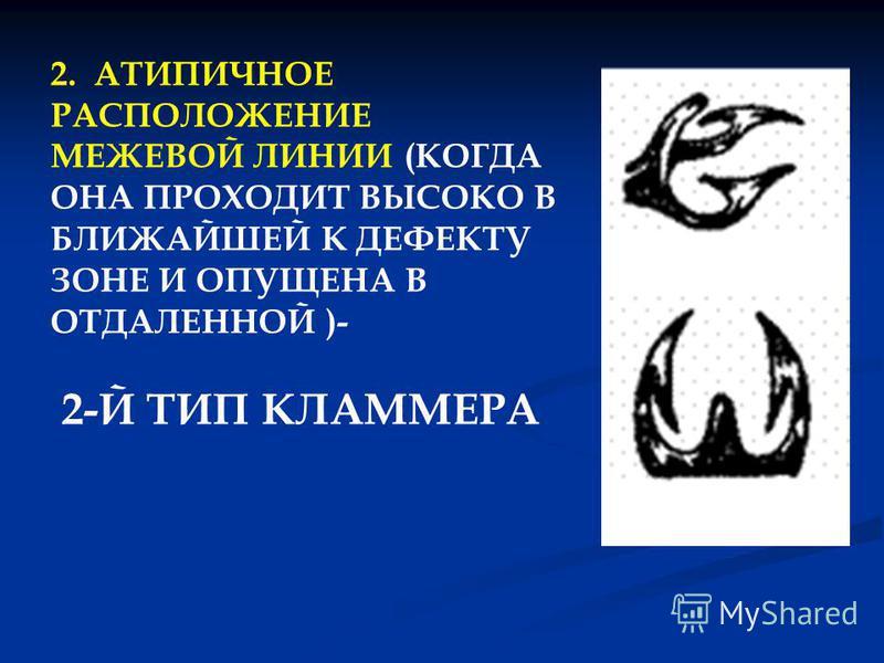 2. АТИПИЧНОЕ РАСПОЛОЖЕНИЕ МЕЖЕВОЙ ЛИНИИ (КОГДА ОНА ПРОХОДИТ ВЫСОКО В БЛИЖАЙШЕЙ К ДЕФЕКТУ ЗОНЕ И ОПУЩЕНА В ОТДАЛЕННОЙ )- 2-Й ТИП КЛАММЕРА