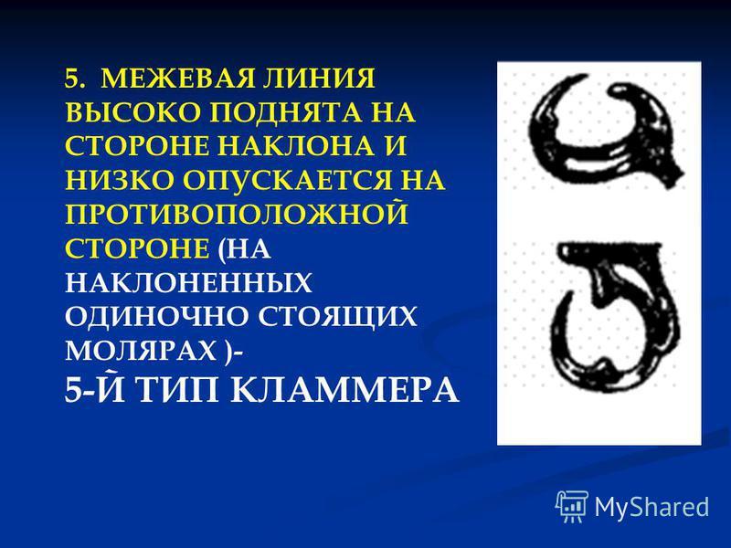 5. МЕЖЕВАЯ ЛИНИЯ ВЫСОКО ПОДНЯТА НА СТОРОНЕ НАКЛОНА И НИЗКО ОПУСКАЕТСЯ НА ПРОТИВОПОЛОЖНОЙ СТОРОНЕ (НА НАКЛОНЕННЫХ ОДИНОЧНО СТОЯЩИХ МОЛЯРАХ )- 5-Й ТИП КЛАММЕРА