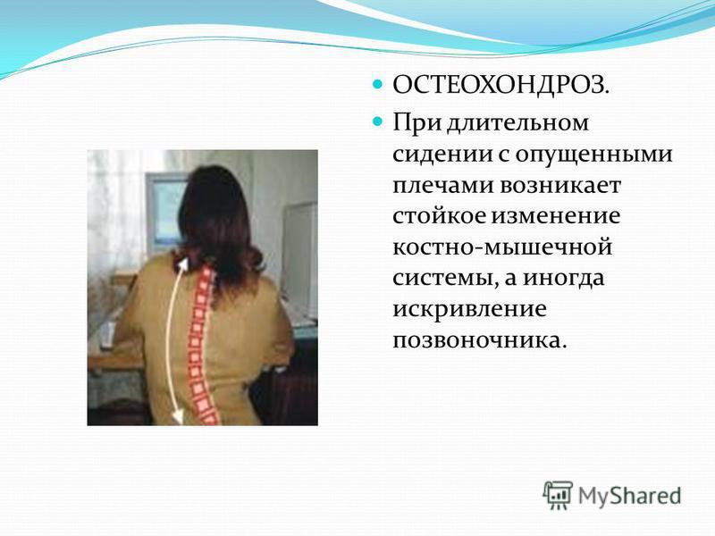 ОСТЕОХОНДРОЗ. При длительном сидении с опущенными плечами возникает стойкое изменение костно-мышечной системы, а иногда искривление позвоночника.