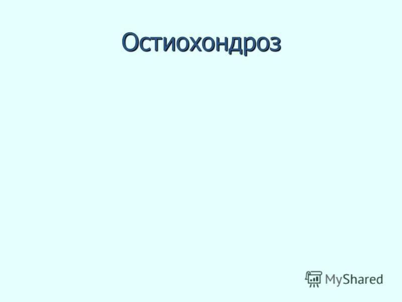 Остиохондроз