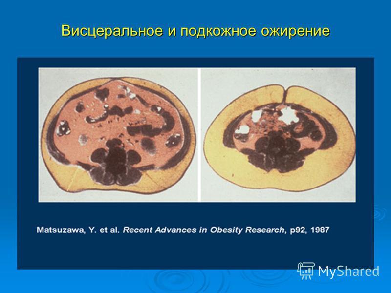 Висцеральное и подкожное ожирение