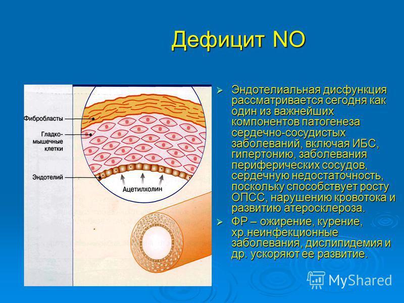 Дефицит NO Эндотелиальная дисфункция рассматривается сегодня как один из важнейших компонентов патогенеза сердечно-сосудистых заболеваний, включая ИБС, гипертонию, заболевания периферических сосудов, сердечную недостаточность, поскольку способствует