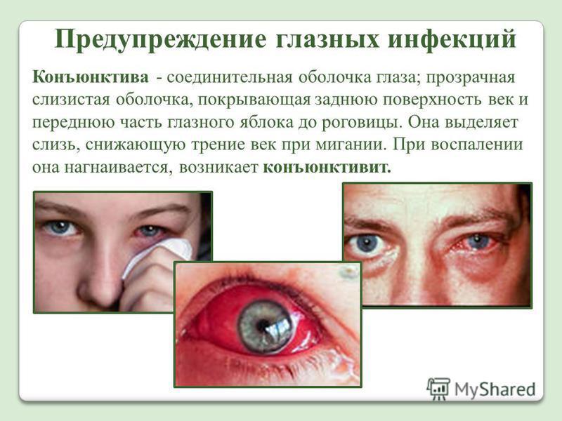 Предупреждение глазных инфекций Конъюнктива - соединительная оболочка глаза; прозрачная слизистая оболочка, покрывающая заднюю поверхность век и переднюю часть глазного яблока до роговицы. Она выделяет слизь, снижающую трение век при мигании. При вос