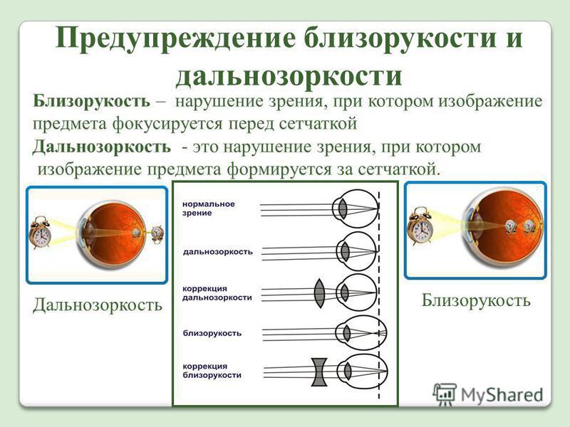 Предупреждение близорукости и дальнозоркости Близорукость – нарушение зрения, при котором изображение предмета фокусируется перед сетчаткой Дальнозоркость - это нарушение зрения, при котором изображение предмета формируется за сетчаткой. Дальнозоркос