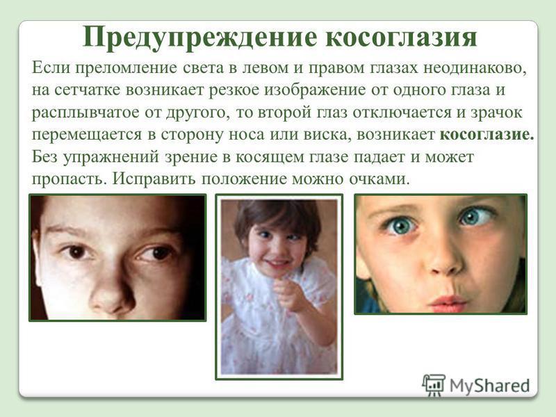 Предупреждение косоглазия Если преломление света в левом и правом глазах неодинаково, на сетчатке возникает резкое изображение от одного глаза и расплывчатое от другого, то второй глаз отключается и зрачок перемещается в сторону носа или виска, возни