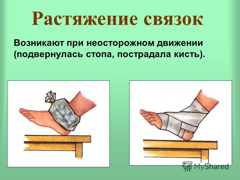 Растяжение связок Возникают при неосторожном движении (подвернулась стопа, пострадала кисть).