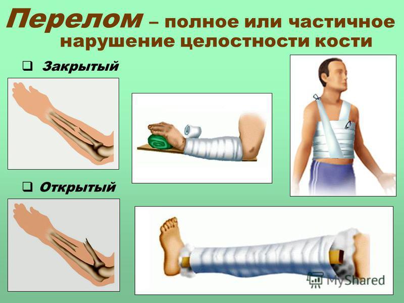 Перелом – полное или частичное нарушение целостности кости Закрытый Открытый