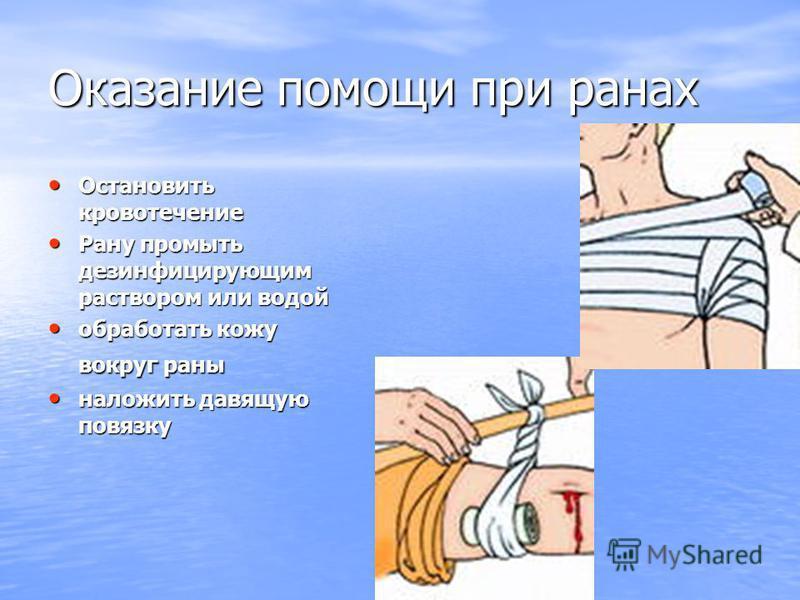 Оказание помощи при ранах Остановить кровотечение Остановить кровотечение Рану промыть дезинфицирующим раствором или водой Рану промыть дезинфицирующим раствором или водой обработать кожу вокруг раны обработать кожу вокруг раны наложить давящую повяз