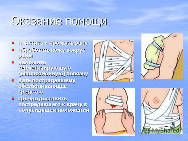 Оказание помощи очистить и промыть рану очистить и промыть рану обработать кожу вокруг раны обработать кожу вокруг раны наложить герметизирующую (окклюзионную) повязку наложить герметизирующую (окклюзионную) повязку дать пострадавшему обезболивающее