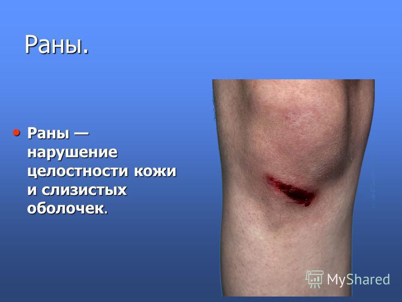 Раны. Раны нарушение целостности кожи и слизистых оболочек. Раны нарушение целостности кожи и слизистых оболочек.