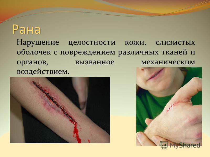 Рана Нарушение целостности кожи, слизистых оболочек с повреждением различных тканей и органов, вызванное механическим воздействием.
