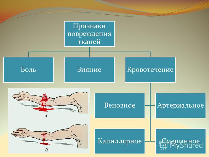 Признаки повреждения тканей Боль ЗияниеКровотечение Венозное Артериальное Капиллярное Смешанное