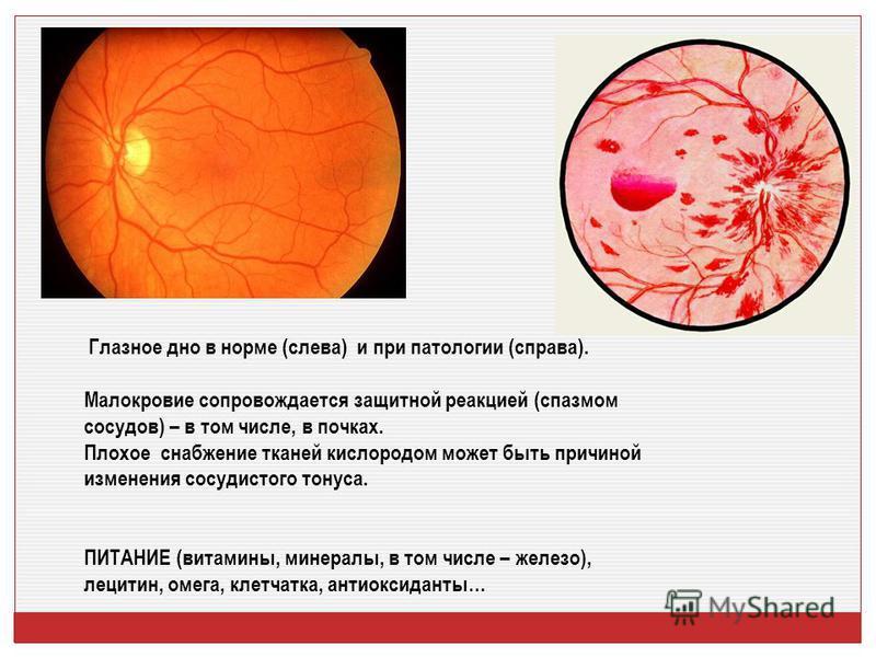 Глазное дно в норме (слева) и при патологии (справа). Малокровие сопровождается защитной реакцией (спазмом сосудов) – в том числе, в почках. Плохое снабжение тканей кислородом может быть причиной изменения сосудистого тонуса. ПИТАНИЕ (витамины, минер
