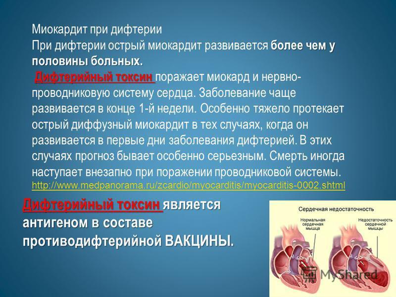 Миокардит при дифтерии более чем у половины больных. При дифтерии острый миокардит развивается более чем у половины больных. Дифтерийный токсин Дифтерийный токсин поражает миокард и нервно- проводниковую систему сердца. Заболевание чаще развивается в