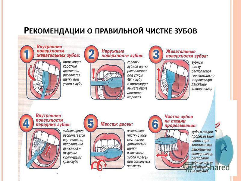 Р ЕКОМЕНДАЦИИ О ПРАВИЛЬНОЙ ЧИСТКЕ ЗУБОВ