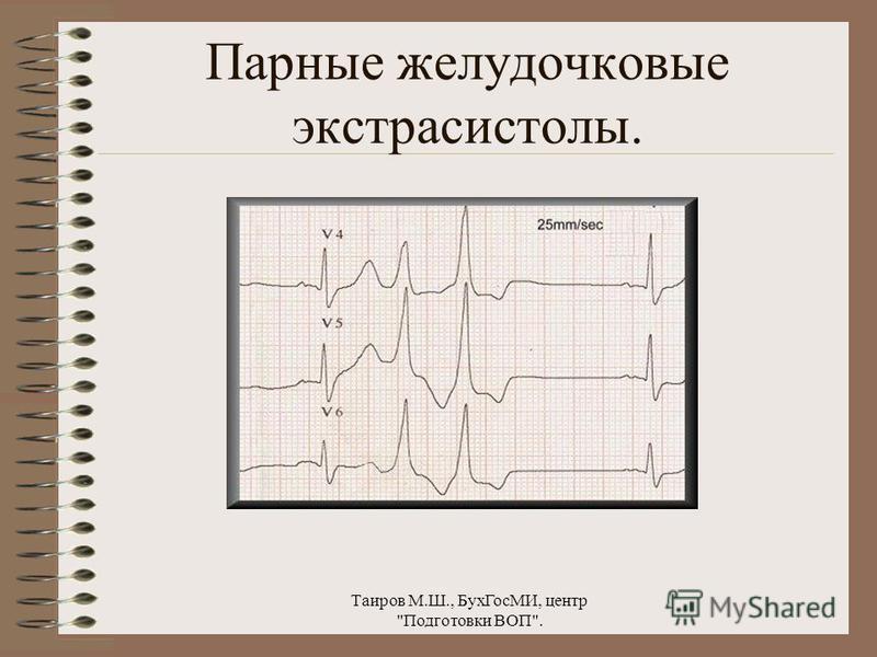 Таиров М.Ш., Бух ГосМИ, центр Подготовки ВОП. Желудочковая экстрасистолия.