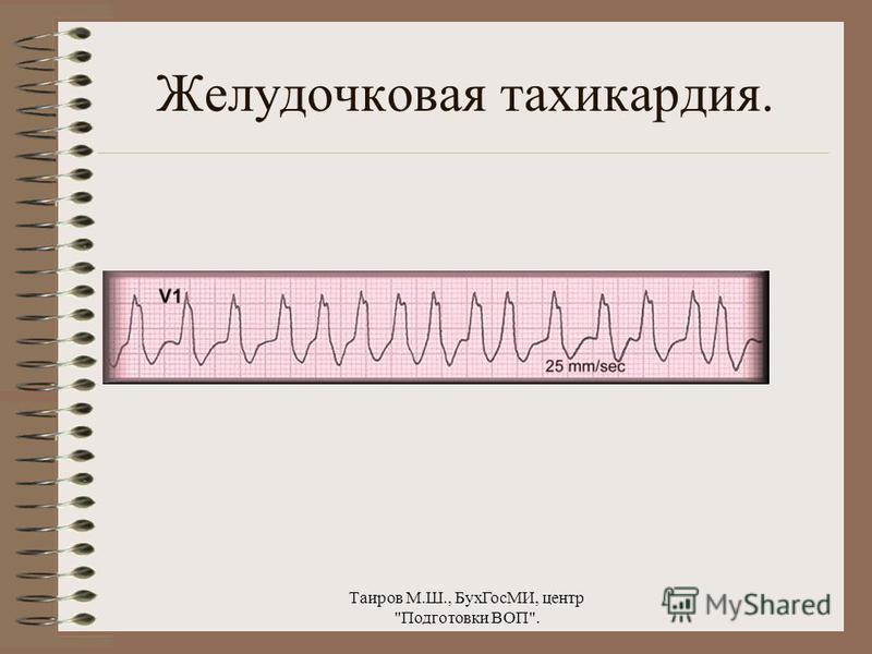 Таиров М.Ш., Бух ГосМИ, центр Подготовки ВОП. Пароксизмальная желудочковая тахикардия.