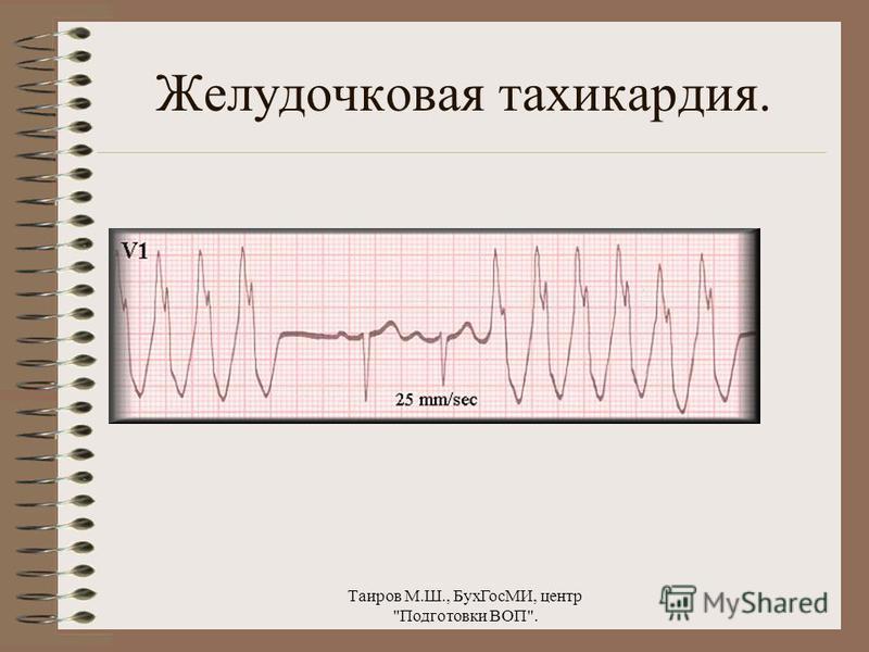 Таиров М.Ш., Бух ГосМИ, центр Подготовки ВОП. Желудочковая тахикардия.
