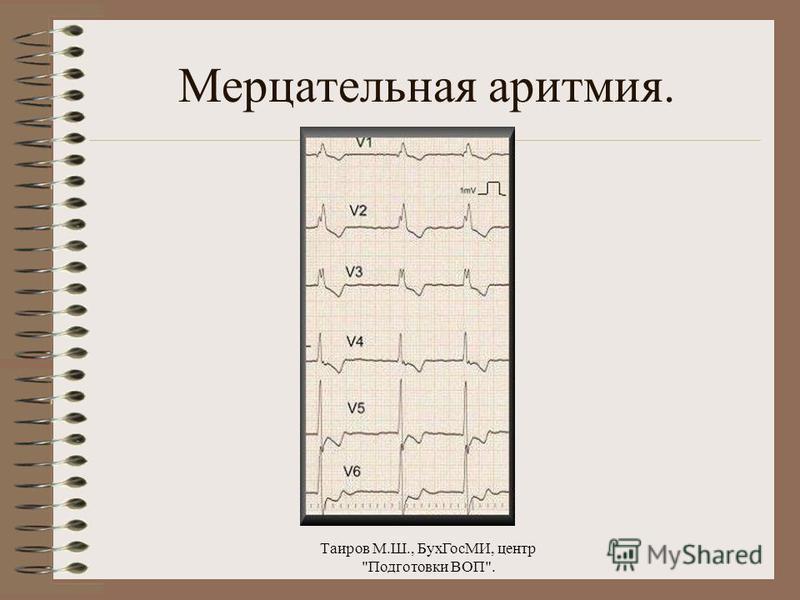 Таиров М.Ш., Бух ГосМИ, центр Подготовки ВОП. Трепетание предсердий.
