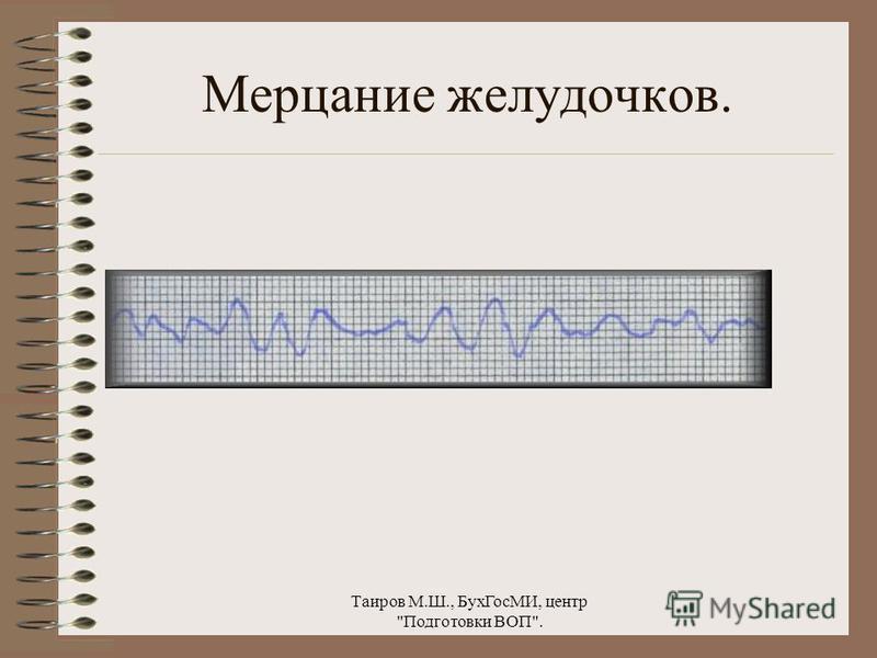 Таиров М.Ш., Бух ГосМИ, центр Подготовки ВОП. Мерцательная аритмия.