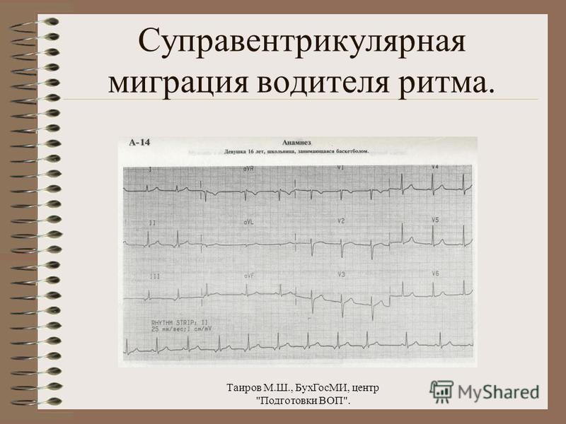 Таиров М.Ш., Бух ГосМИ, центр Подготовки ВОП. Синусовая аритмия