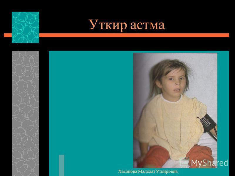 Хасанова Малохат Уткировна Уткир астма