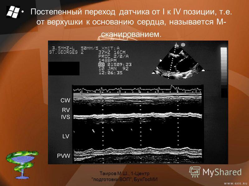 Таиров М.Ш., 1-Центр подготовки ВОП, Бух ГосМИ 11 Постепенный переход датчика от I к IV позиции, т.е. от верхушки к основанию сердца, называется М- сканированием.