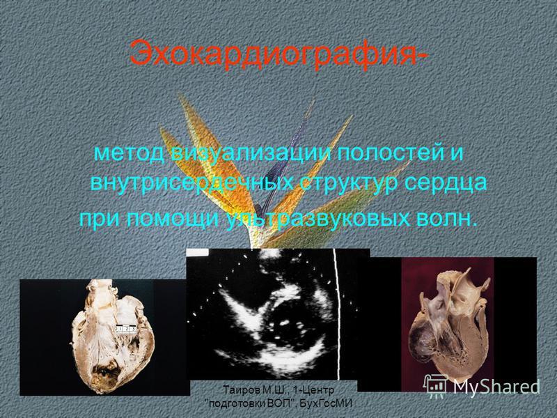 Таиров М.Ш., 1-Центр подготовки ВОП, Бух ГосМИ 2 Эхокардиография- метод визуализации полостей и внутрисердечных структур сердца при помощи ультразвуковых волн.