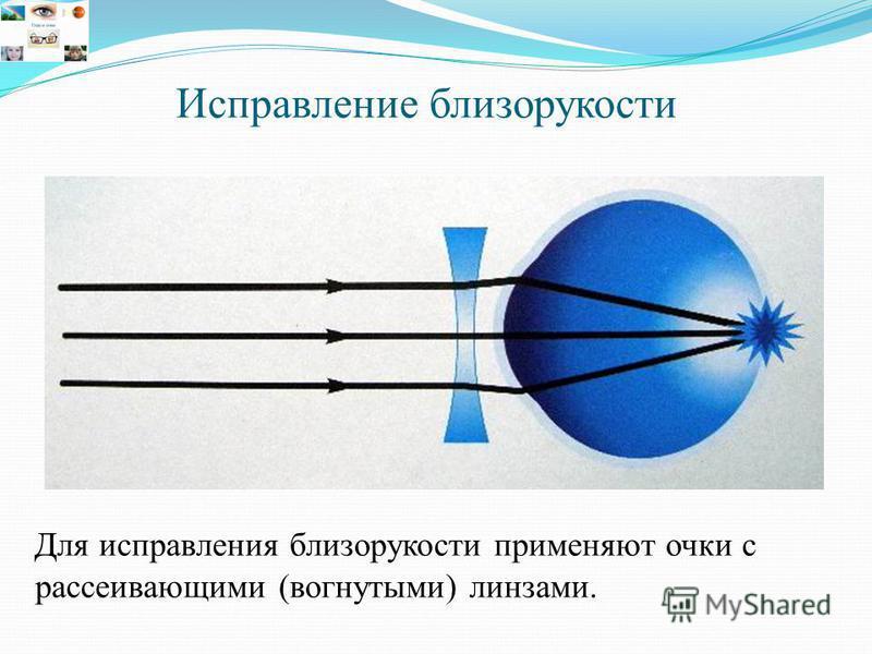 Для исправления близорукости применяют очки с рассеивающими (вогнутыми) линзами.