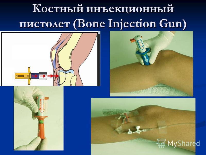 Костный инъекционный пистолет (Bone Injection Gun)