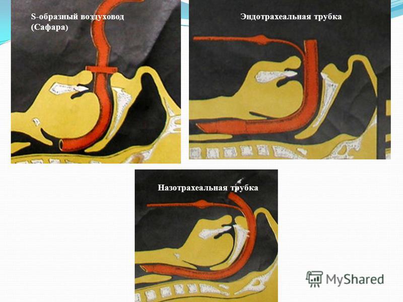 S-образный воздуховод (Сафара ) Эндотрахеальная трубка Назотрахеальная трубка