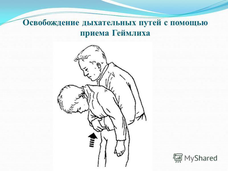 Освобождение дыхательных путей с помощью приема Геймлиха