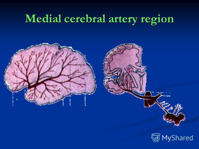 Medial cerebral artery region