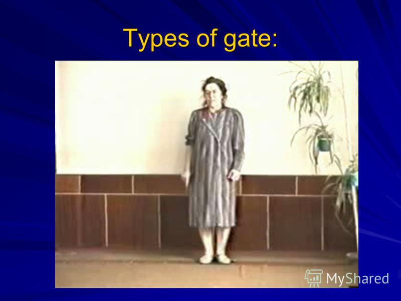 Types of gate: