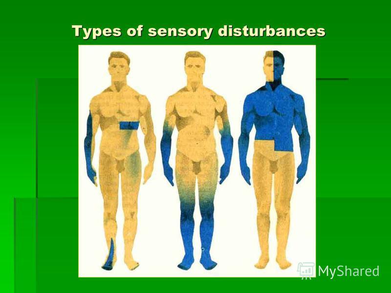 Types of sensory disturbances