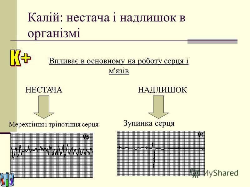 Калій: нестача і надлишок в організмі Впливає в основному на роботу серця і м'язів Мерехтіння і тріпотіння серця Зупинка серця НЕСТАЧАНАДЛИШОК
