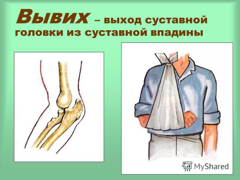 Вывих – выход суставной головки из суставной впадины