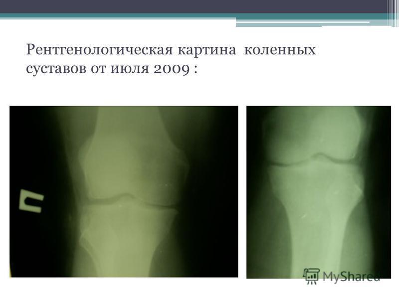 Рентгенологическая картина коленных суставов от июля 2009 :