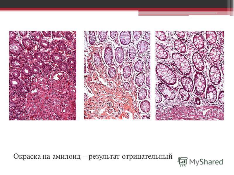 Окраска на амилоид – результат отрицательный