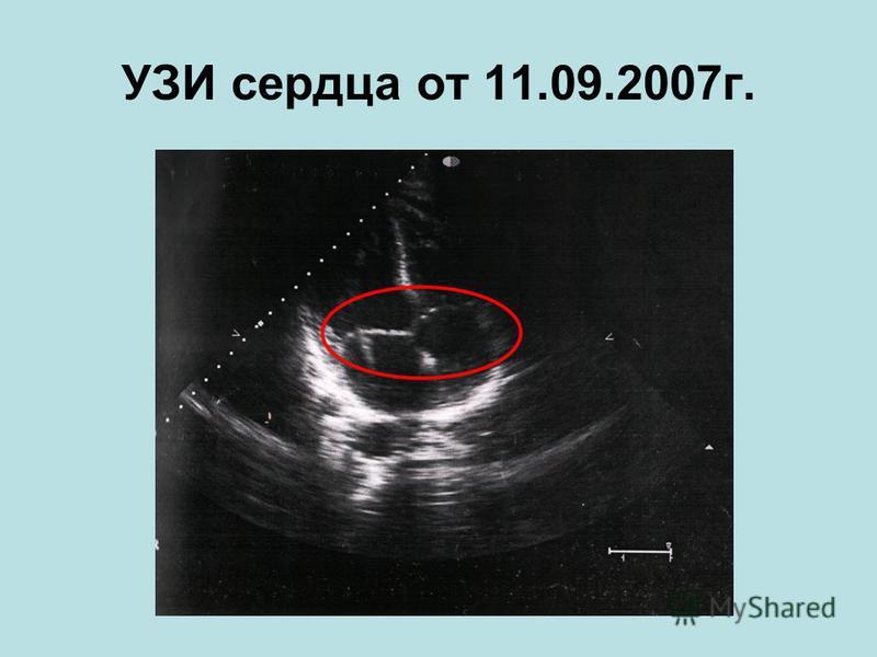 УЗИ сердца от 11.09.2007 г.