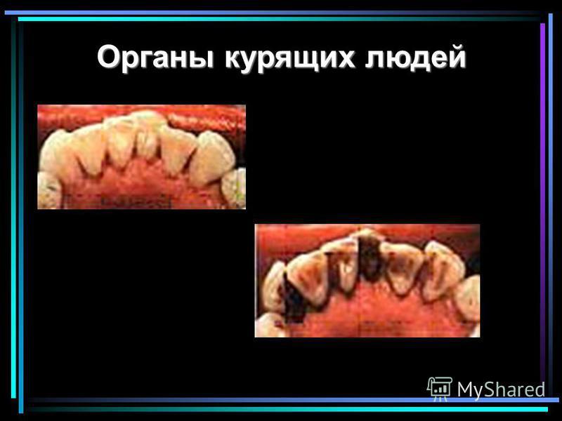 Органы курящих людей