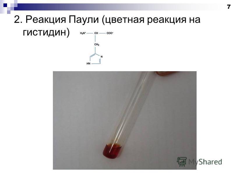 2. Реакция Паули (цветная реакция на гистидин) 7