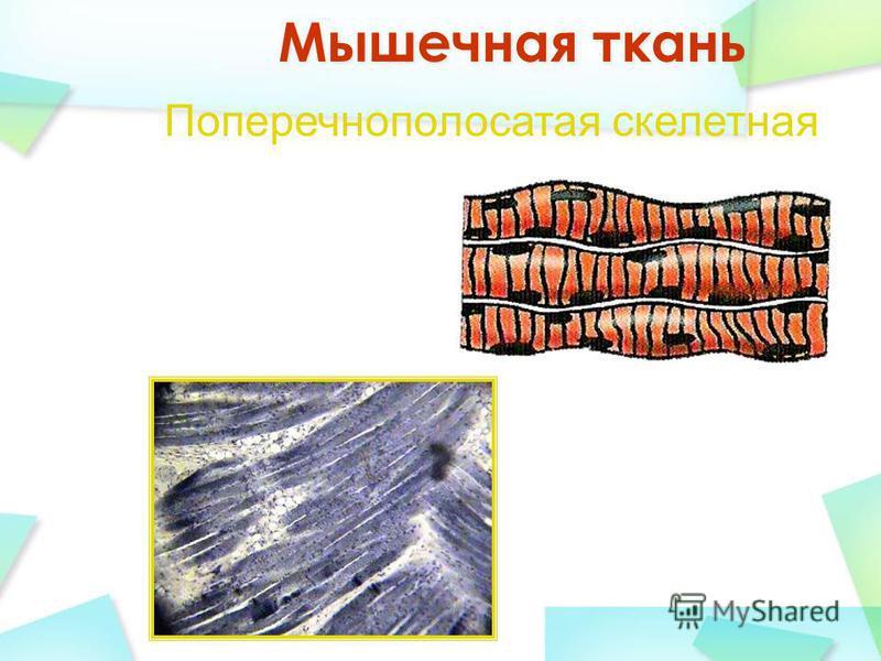 Поперечнополосатая скелетная